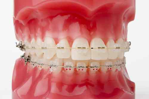 braces-model